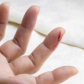 schnitt-finger